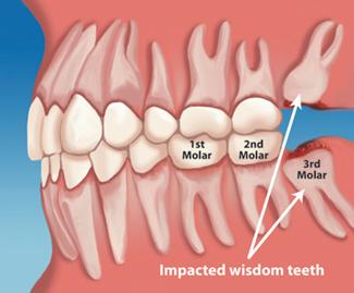 Impacted Molars