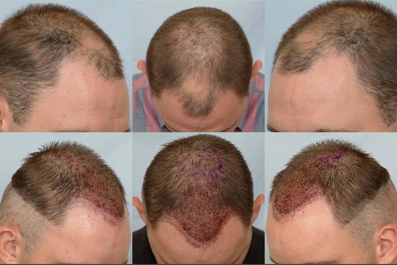 acıbadem hair implant sayfa 2