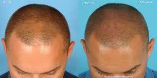 acıbadem hair implant sayfa